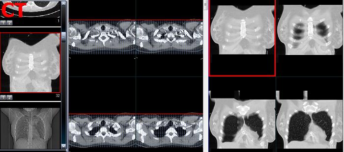 Was wird bei CT Thorax abgebildet