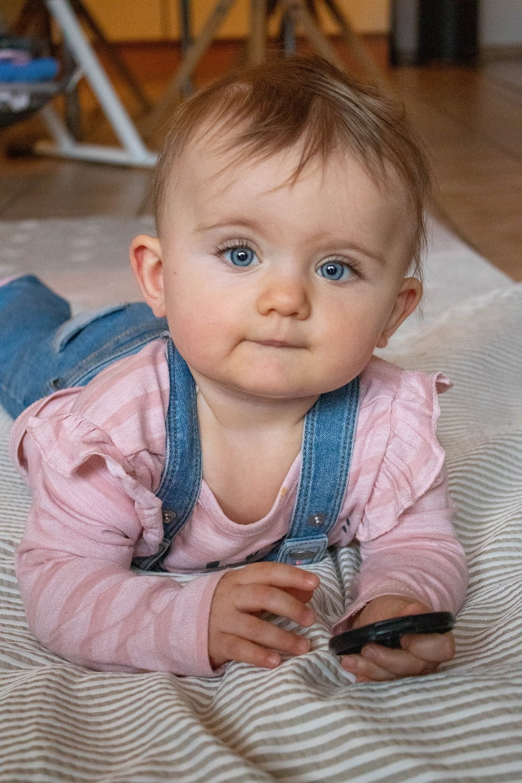 Verformter Babykopf
